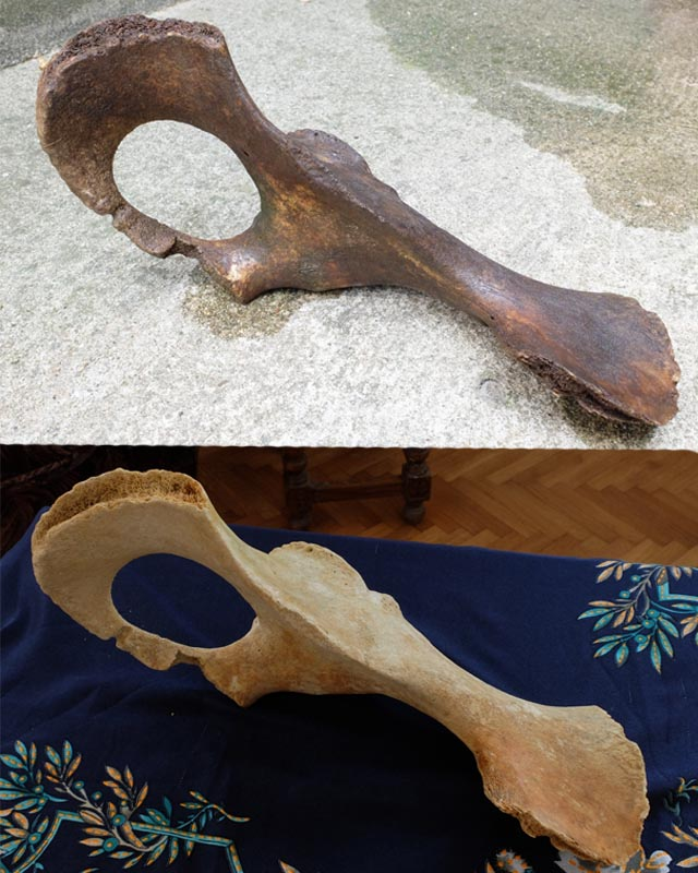 bone before and after