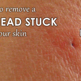 remove tick head stuck in skin