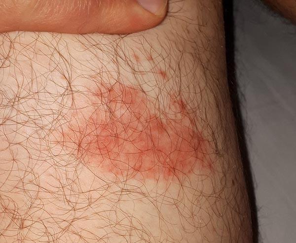 Early stage lyme rash