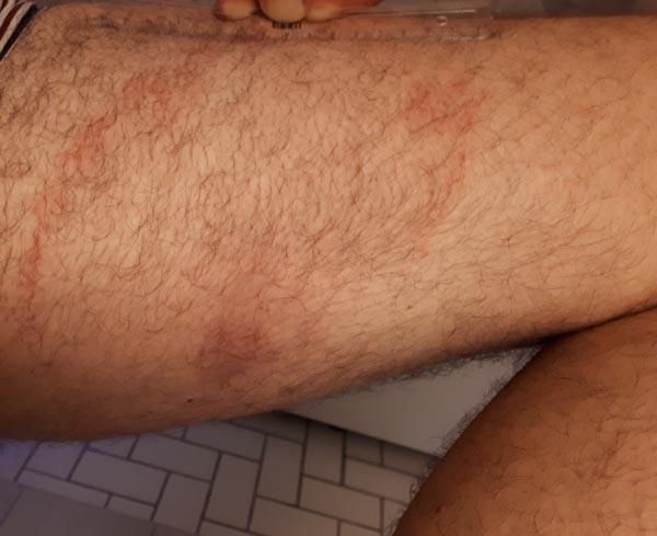 untreated Lyme rash at 8 weeks
