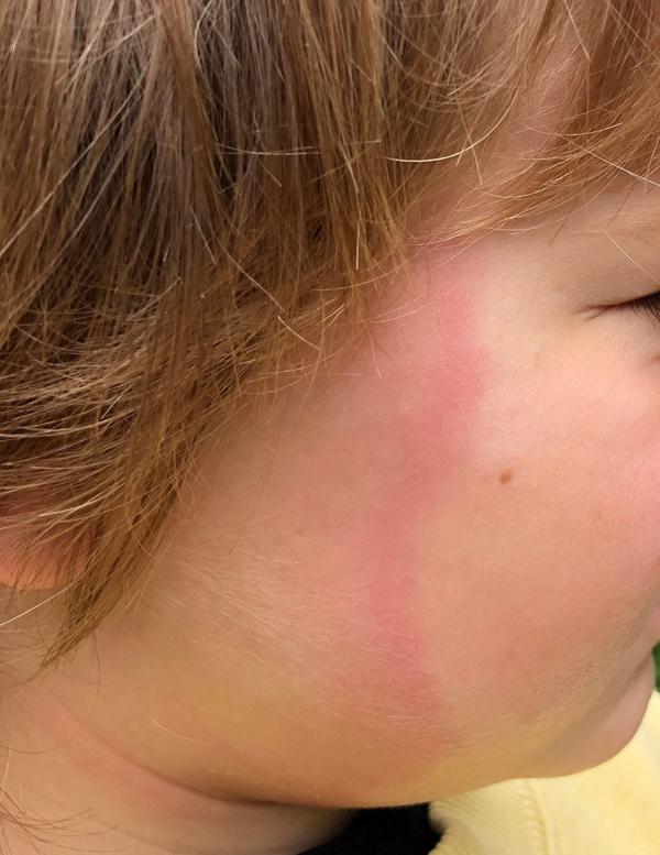 Lyme disease rash hidden in hair