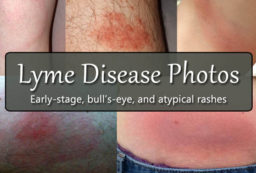 Lyme disease photos