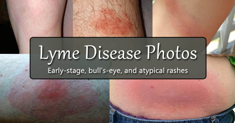 Lyme disease photos