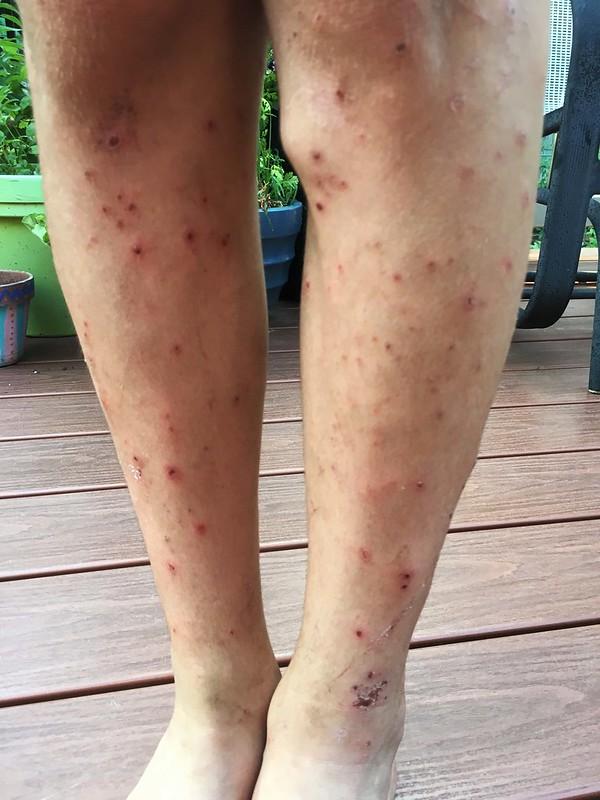 camping mosquito bites
